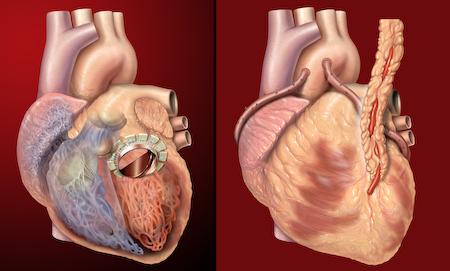 Válculas do coração