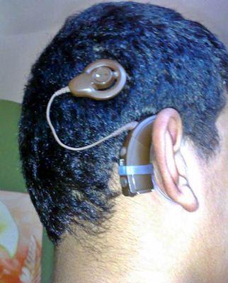 Implante de aparelho auditivo coclear