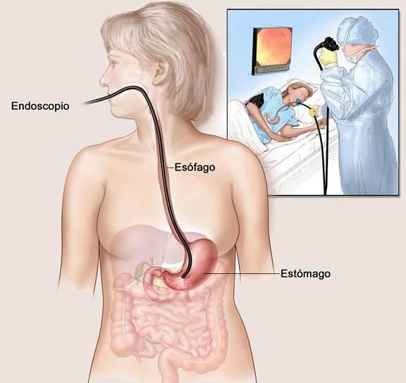 Procedimento da endoscopia